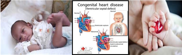 Image result for heart problems in children
